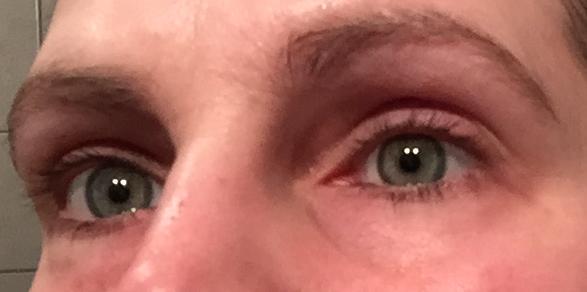 Augenringe ungeschminkt