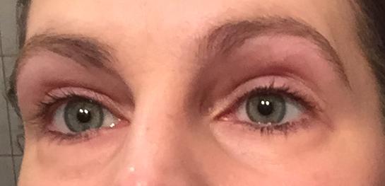 Augenringe ungeschminkt1