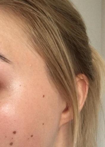 REIZFREIE PFLEGE – Gastreview Angelika – Heute Sonnenschutz von Heliocare